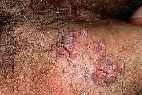 Genital herpes: MedlinePlus Medical Encyclopedia